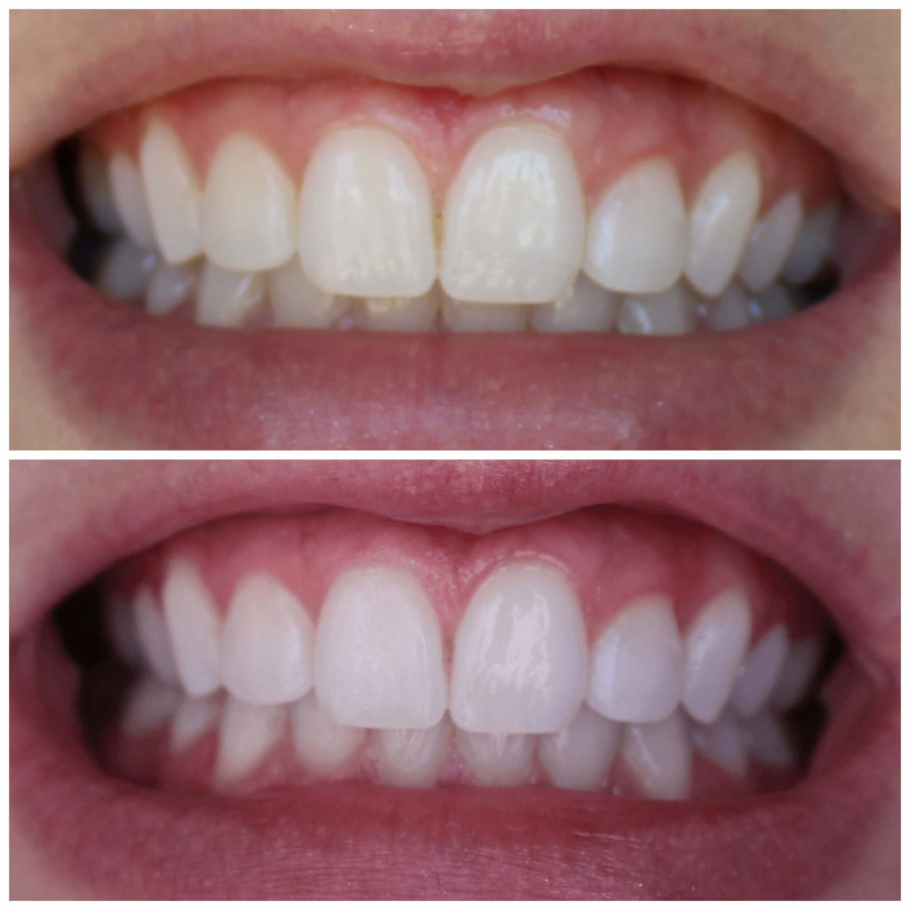 smile brilliant teeth whitening results simply stephaniekay